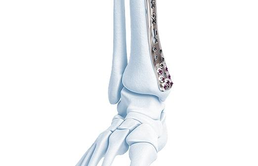 DePuySynthes - VA-LCP Anterolateral Tibia Distal