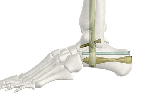 DePuySynthes - TomoFix Medial High Tibial Plate MHT