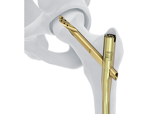 DePuySynthes - Titanium Fixation Nail Advanced (TFNA)
